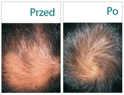 skuteczne przeciw wypadaniu włosów